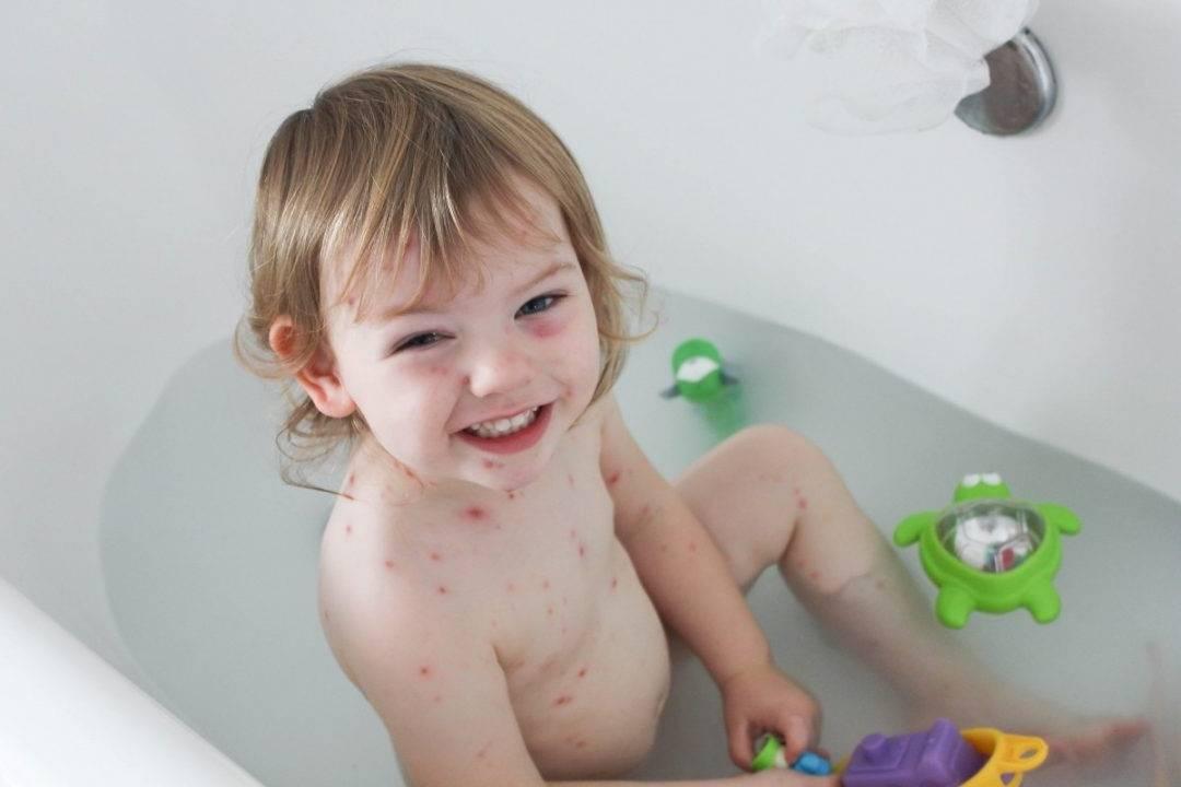 Можно ли купать ребенка при ветрянке, и когда мыть после – на какой день и как мыться детям