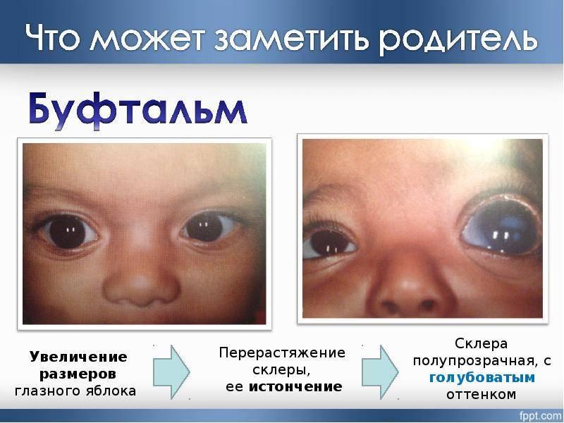 Дальнозоркость у ребенка - причины и симптомы заболевания, как определяют у самых маленьких до 1 года, коррекция и профилактика