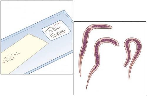 Соскоб на энтеробиоз (яйцеглист): сколько делают и как взять соскоб на энтеробиоз