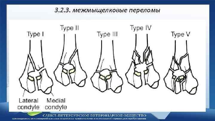 Классификация переломов плечевой кости у детей