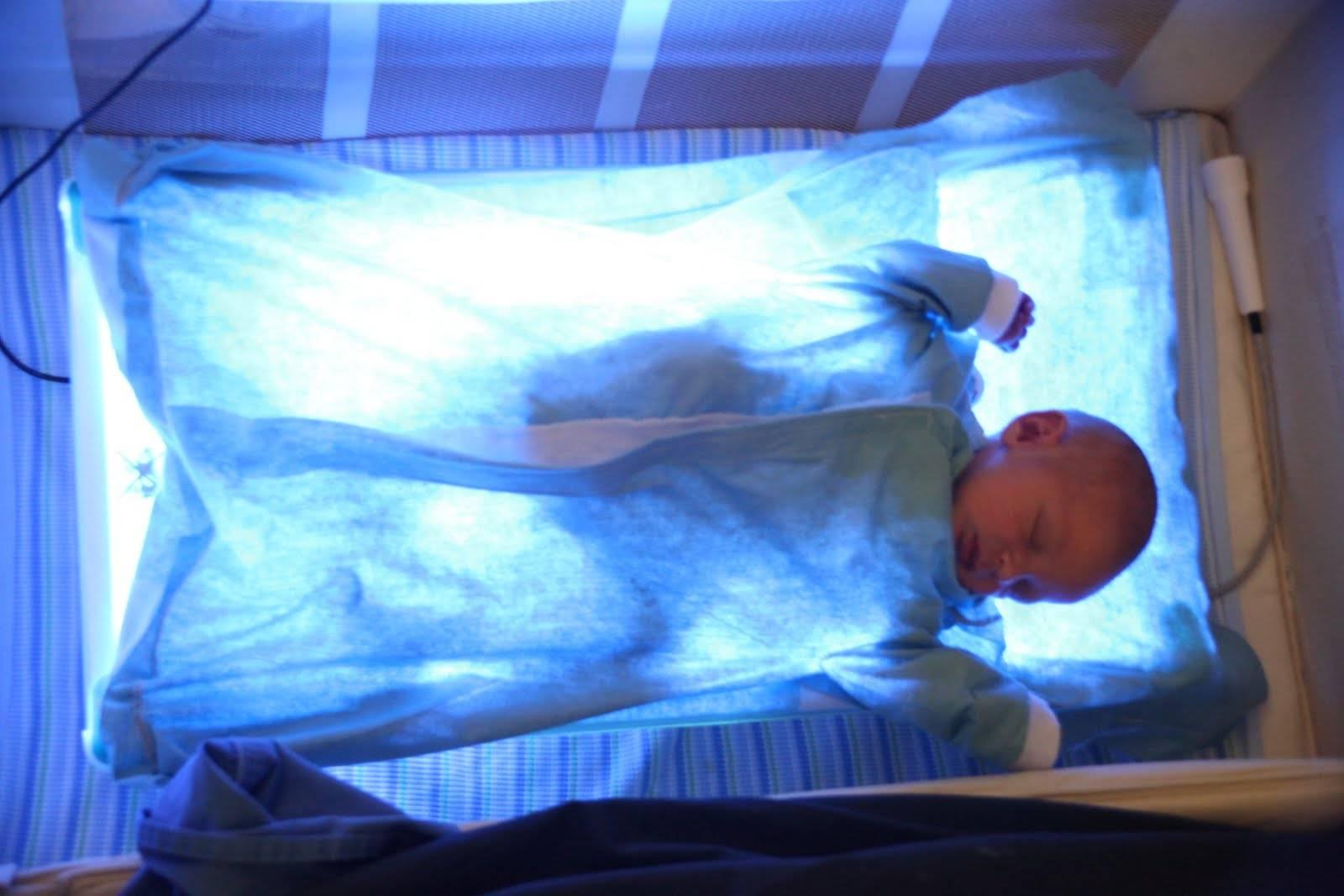 Нужна ли фототерапия при лечении желтухи у новорожденных?