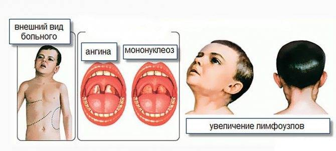 Особенность симптомов и лечения мононуклеоза у детей