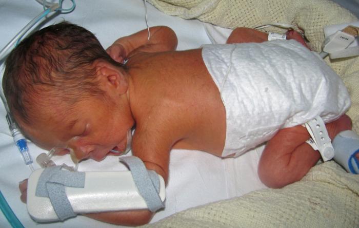 Сзрп при беременности: что это такое, причины, риски и лечение