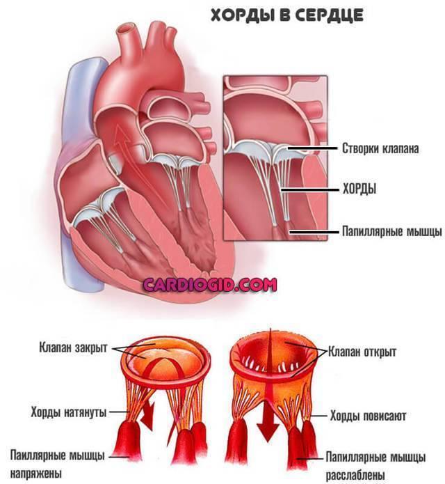 Хорда в сердце у ребенка - здоров.сердцем