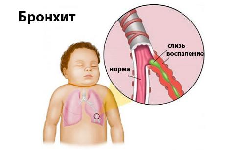 Симптомы и методы лечения бронхита у новорожденного