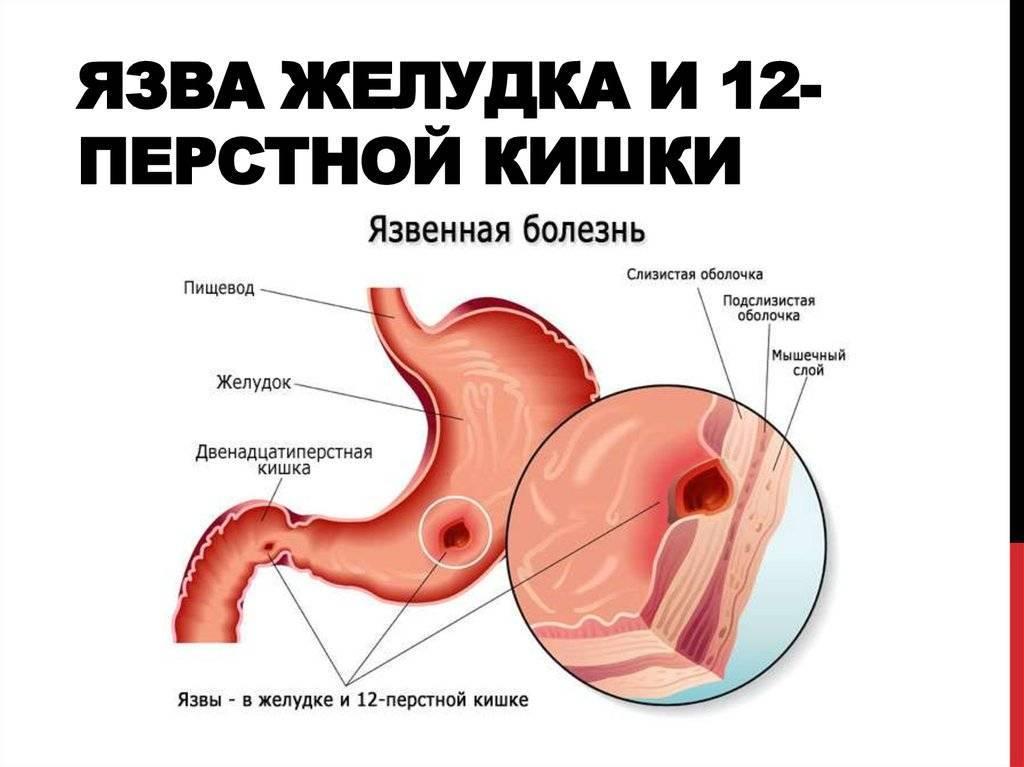 Язвенная болезнь желудка и 12-перстной кишки: симптомы, диагностика, лечение
