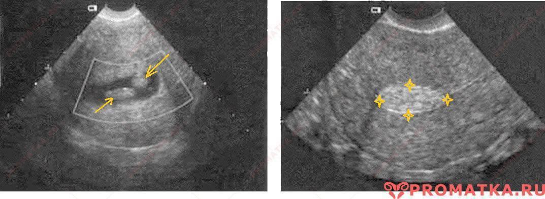 Могут ли кисту яичника на узи перепутать с беременностью на узи