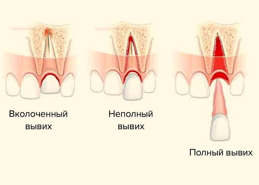 У ребенка откололся зуб передний постоянный - vvv-dent.ru