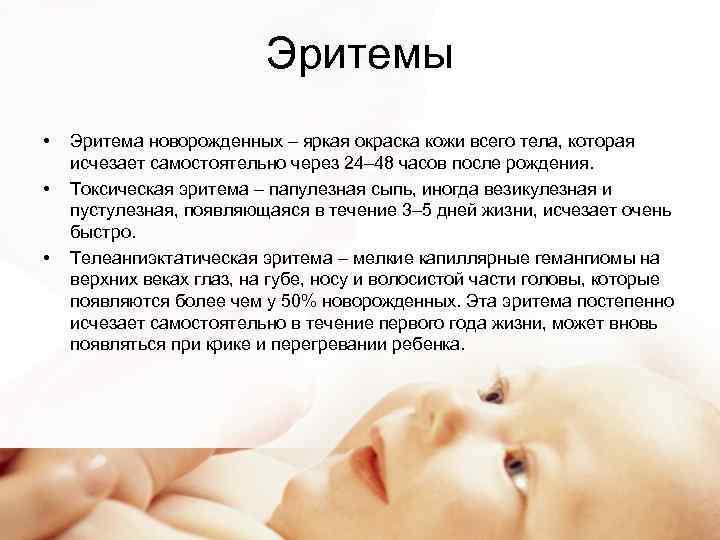 Токсическая эритема у новорожденных, детей и взрослых - причина возникновения, симптомы и лечение