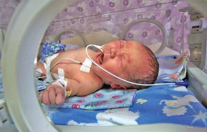 Асфиксия новорожденных – 4 варианта развития событий и их последствия для ребенка