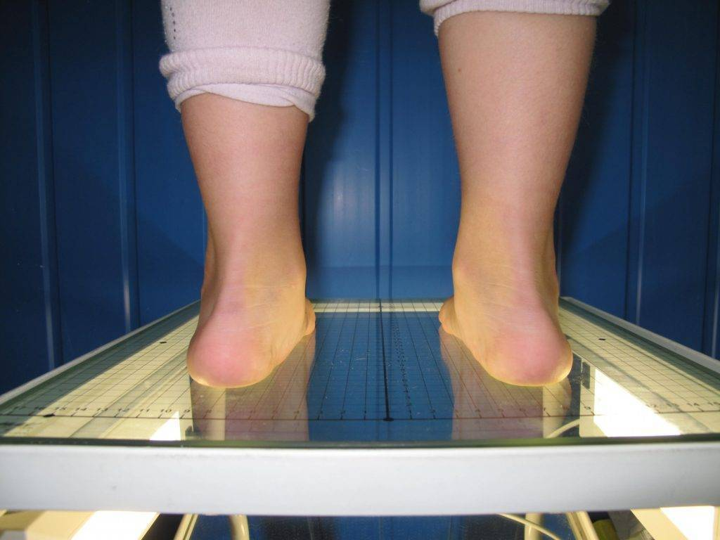 Плоско-вальгусная стопа - методы коррекции и профилактики