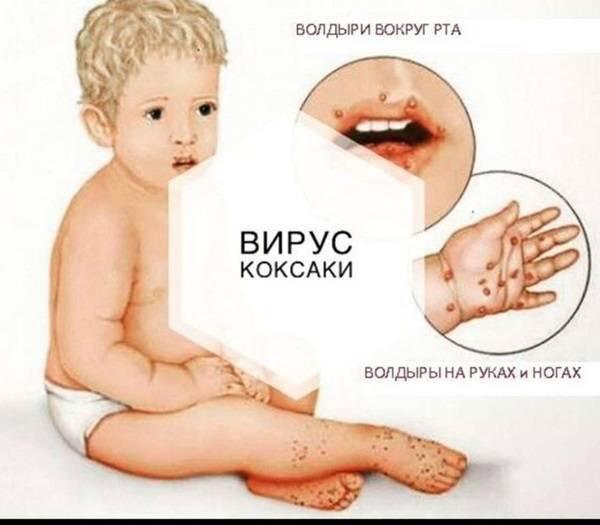 Вирус коксаки: симптомы и лечение у детей (фото), вирус у взрослых | мед.консультант - здоровье on-line