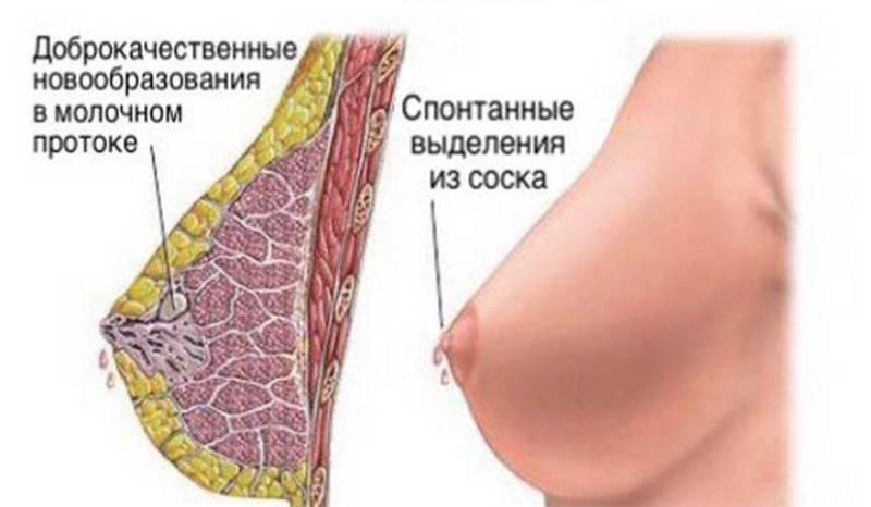 Болит грудь за неделю до месячных: почему это происходит и что делать? | месячные | vpolozhenii.com