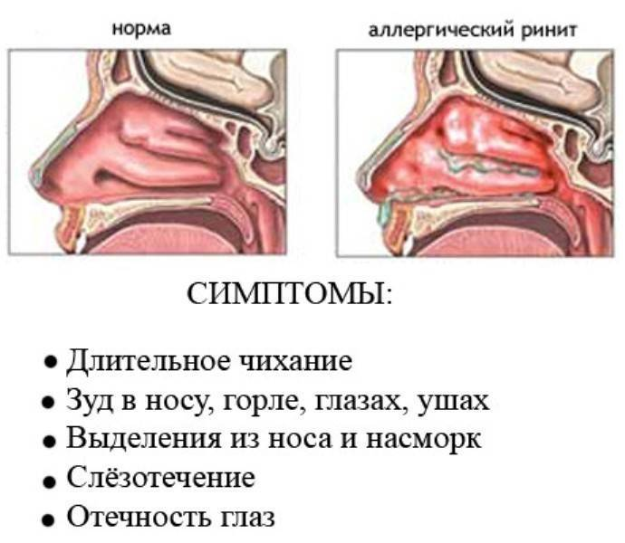 Лечение заднего ринита у ребенка. симптомы, способы, народные средства