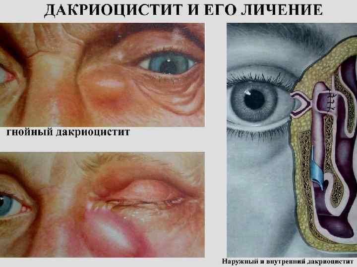 Дакрицистит у новорожденных - симптомы, лечение капли, операция, фото