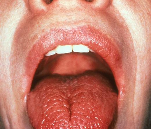 Сухость во рту у ребенка: причины, диагностика данной жалобы и лечение
