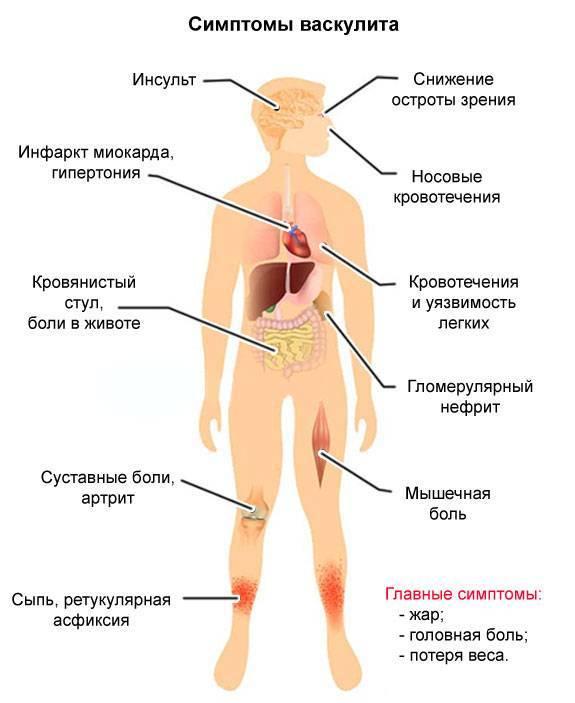 Геморрагические васкулиты: причины и развитие, формы, симптоматика, диагностика, лечение