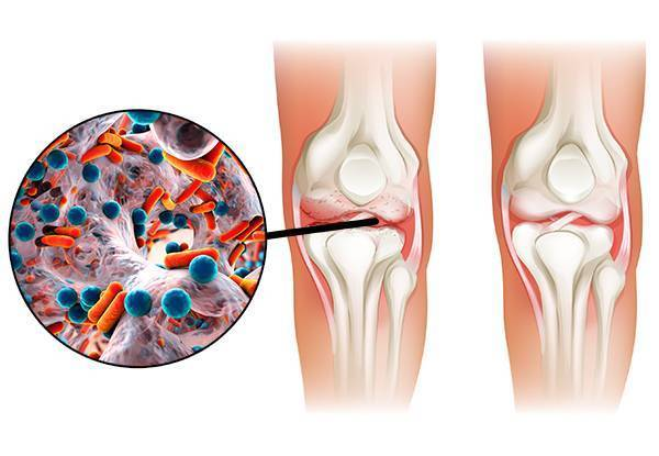 Детский артрит коленного сустава: симптомы и лечение