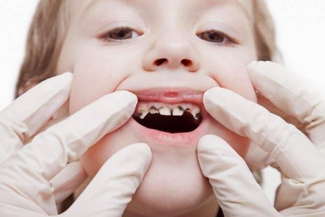 Детский кариес молочных зубов: надо ли его лечить ребёнку, какое лечение необходимо, советы стоматологов