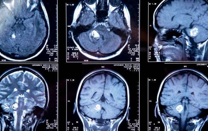 Опухоль мозга у ребенка: как ее распознать и что делать