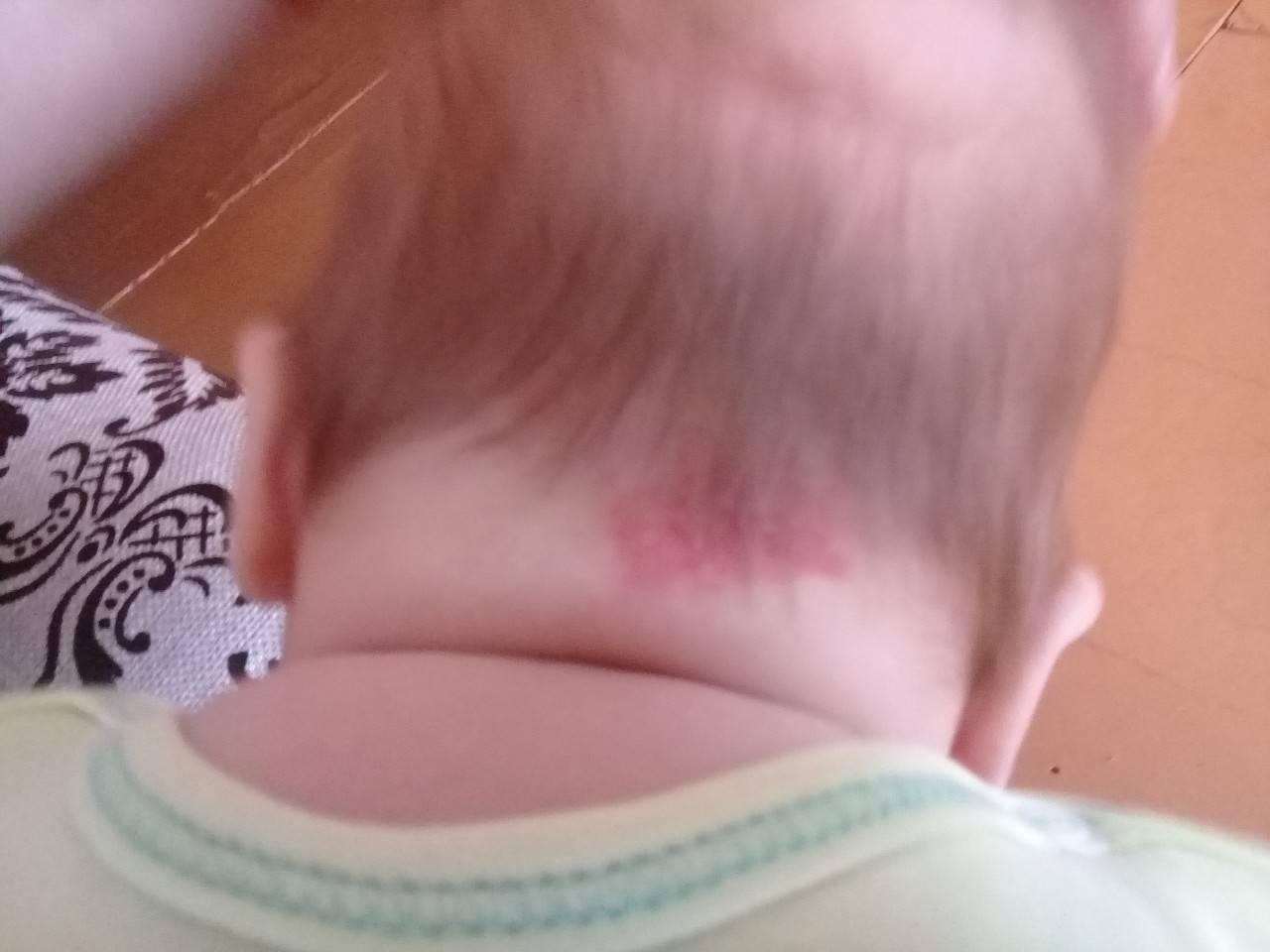 Красные родимые пятна у новорождённых: на голове, лице, спине и животе