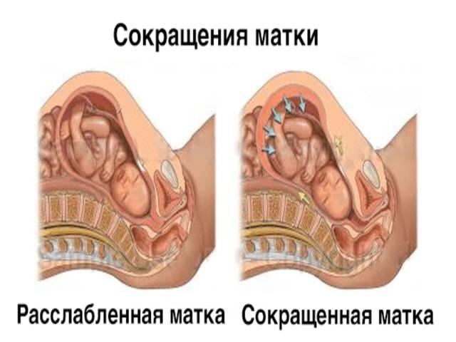 Утрожестан при короткой шейке матки - советы врачей