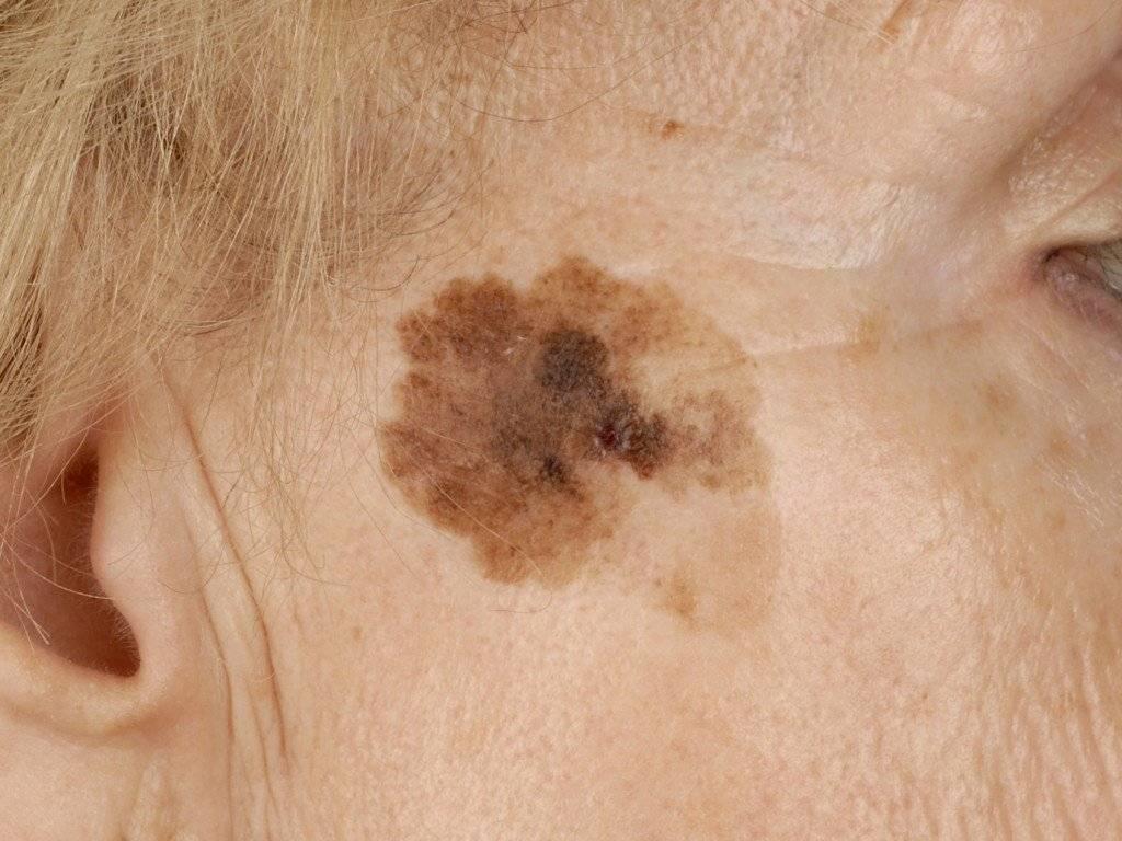 Проявления коронавируса: какие высыпания на коже должны насторожить
