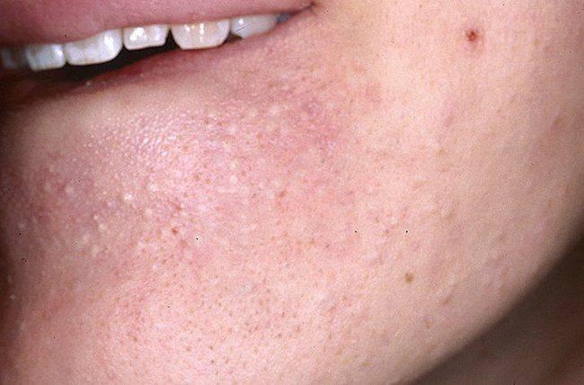 Что делать при аллергии на подбородке у детей. причины появления сыпи у ребенка на подбородке: раздражение от слюней, аллергия и другие проблемы покраснение на бороде у ребенка