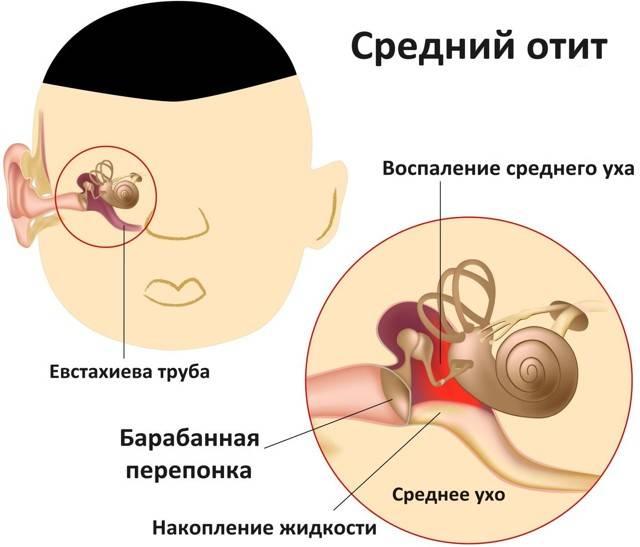 Из уха идет кровь: что это, почему, причины, что делать, у взрослых и ребенка