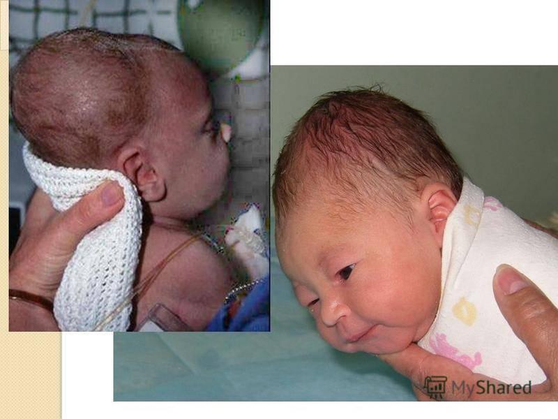 Кефалогематома на голове у новорожденного последствия