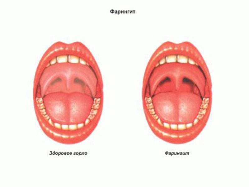 Красное горло у ребенка чем лечить (46 фото): болит, температура, точки, 2 года