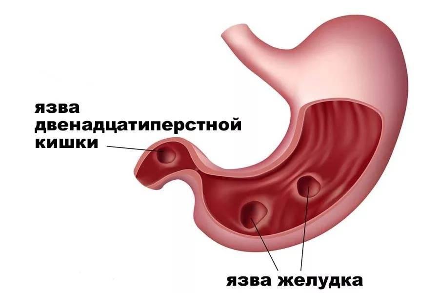 Язвенная болезнь желудка и 12 перстной кишки у детей лечение