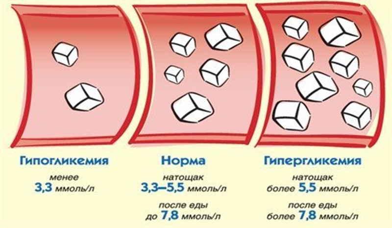 Повышенный сахар у ребенка: причины гипергликемии, признаки высокой глюкозы у ребенка