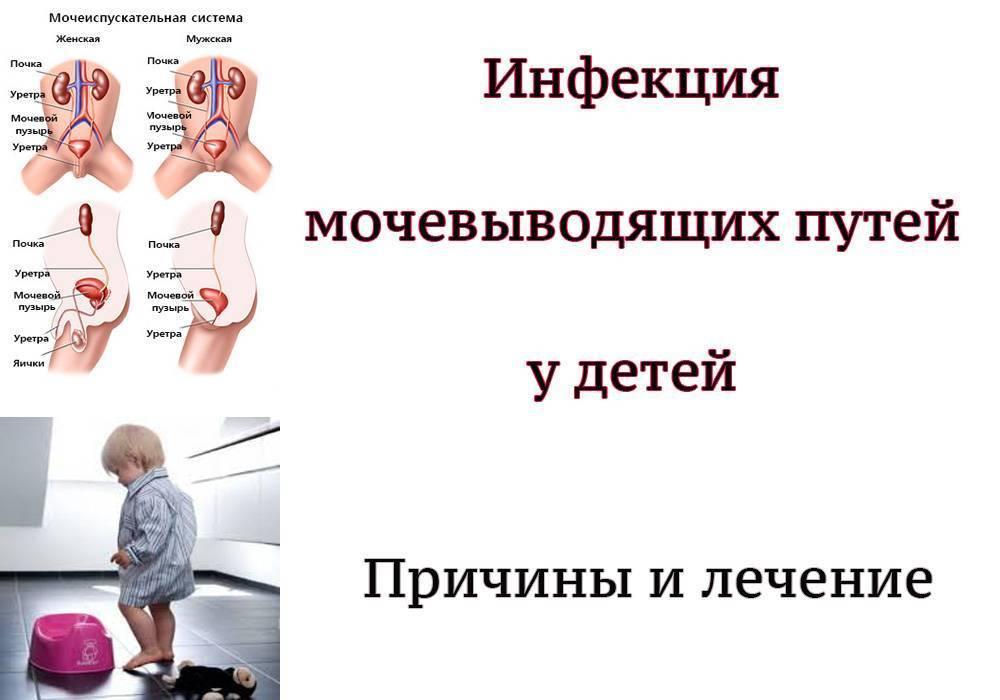Пиелонефрит у грудничков: симптомы, причины, диагностика и лечение заболевания у детей до года