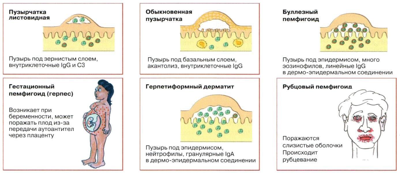 """Буллезный эпидермолиз (""""дети-бабочки""""): фото, продолжительность жизни, прогноз"""