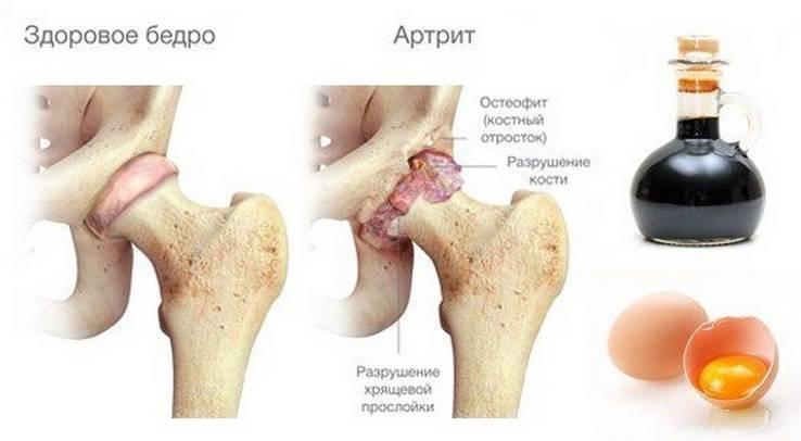 Артрит тазобедренного сустава у детей - причины развития и лечение