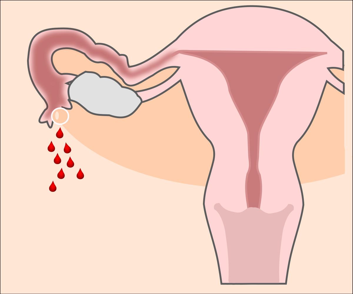 Спайки и беременность: бесплодие неизбежно?