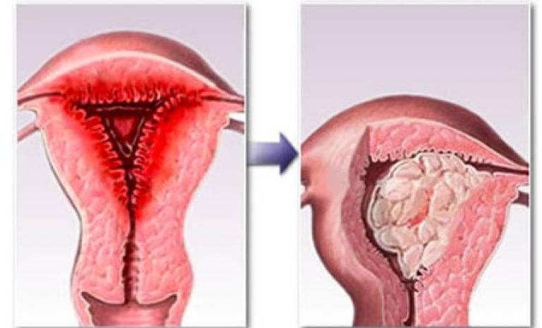 Гиперплазия эндометрия можно ли забеременеть после выскабливания - врачебный метод
