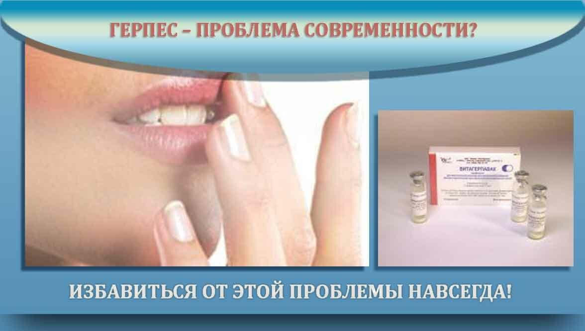 Герпетическая инфекция у детей - возбудитель, признаки, проявления на коже, диагностика и как лечить