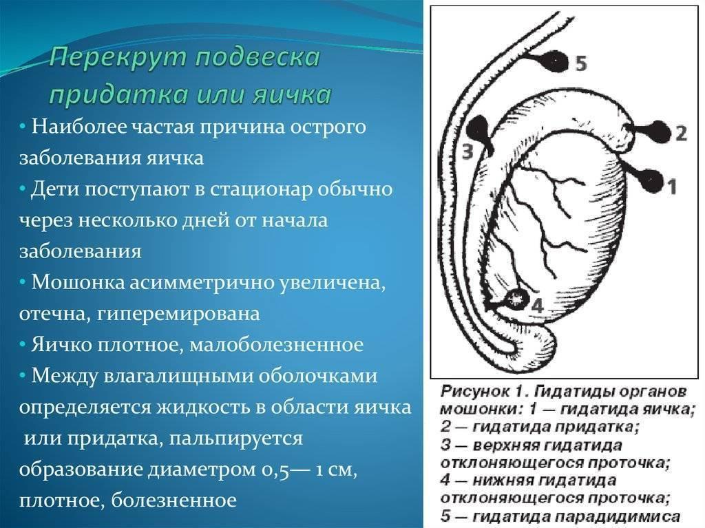 Перекрут яичка у ребенка и у взрослых, симптомы, лечение
