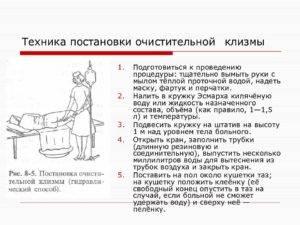 Клизма грудничку - как сделать самостоятельно в домашних условиях | пуздрик.ру