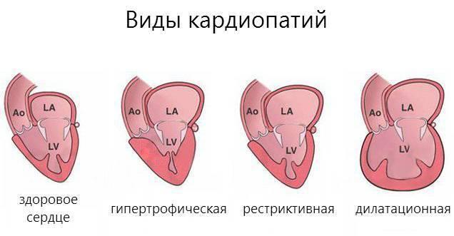 Кардиопатия и кардиомиопатия в чем разница
