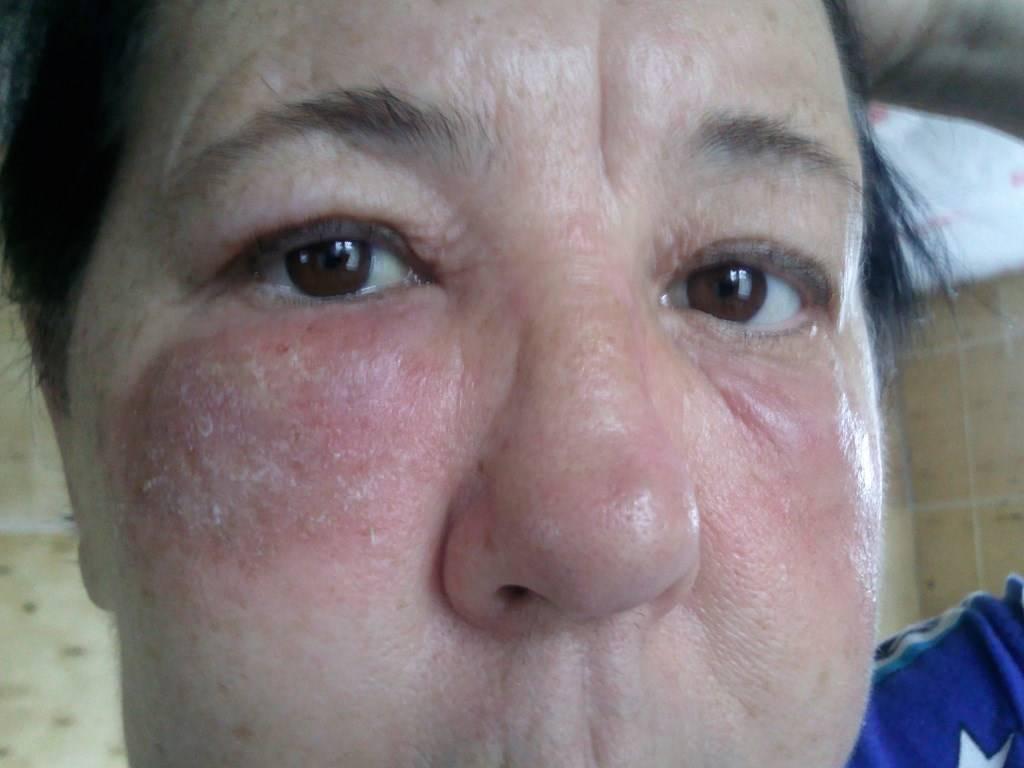 Опухла переносица у ребенка, лоб между бровями и глаза – в чем причина отека?