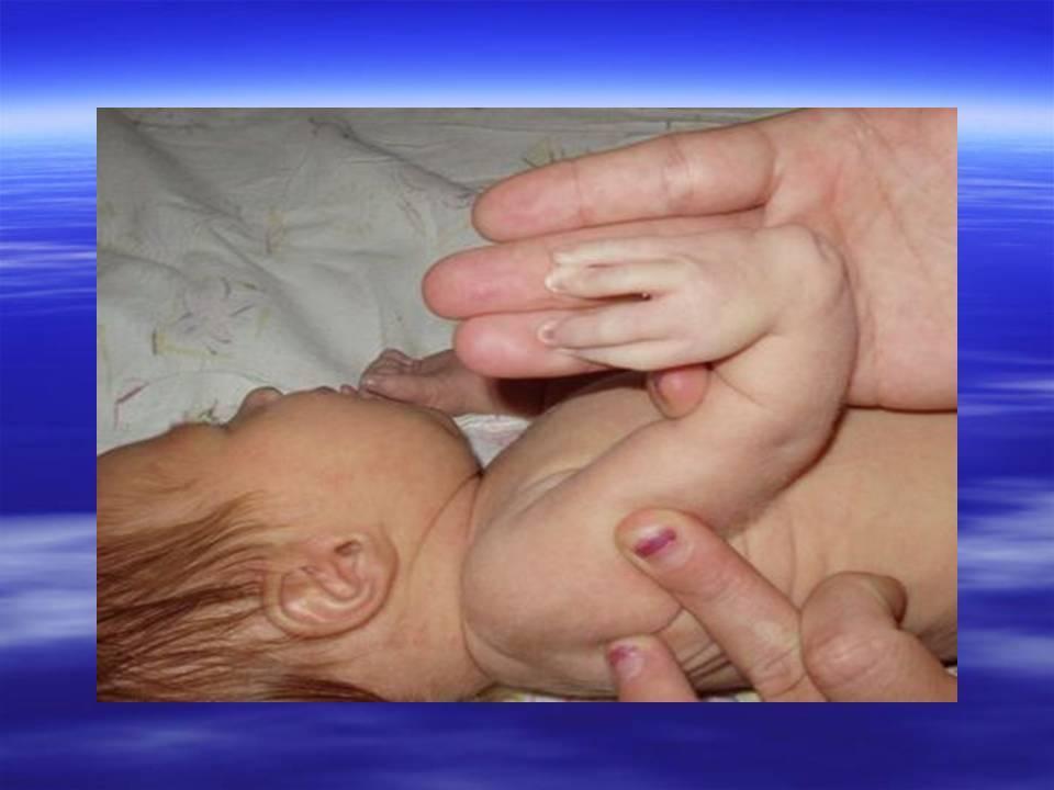 Впр плода – врожденные пороки развития: причины, диагностика, оптимальный срок для выявления - все о болезнях