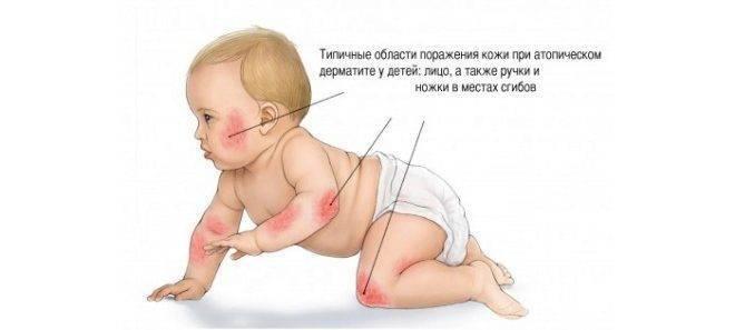 Целиакия симптомы у грудных детей