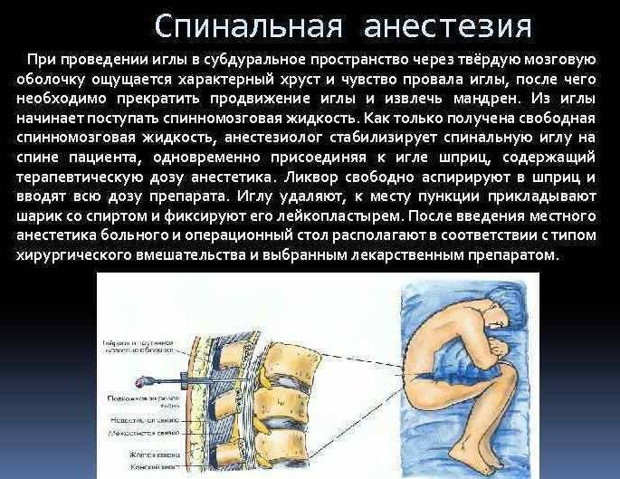 Причины боли в спине после эпидуральной анестезии