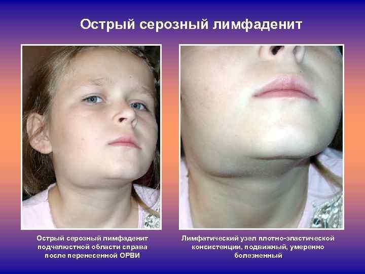 Шейный лимфаденит у детей: причины, симптомы, лечение, профилактика