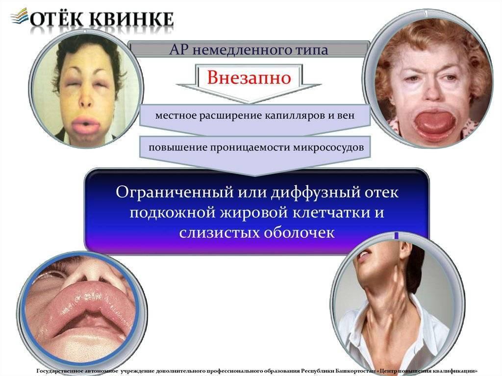 Аллергический отек глаз и век: что делать и как снять опухлость у детей и взрослых