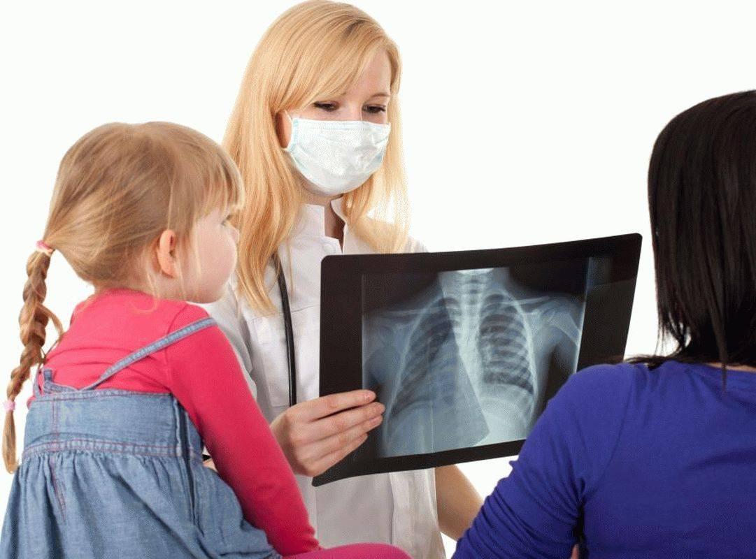 Симптомы туберкулеза на ранней стадии у детей