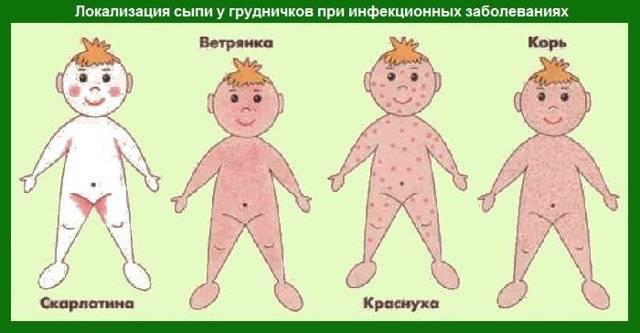 Сыпь на ягодицах у ребенка